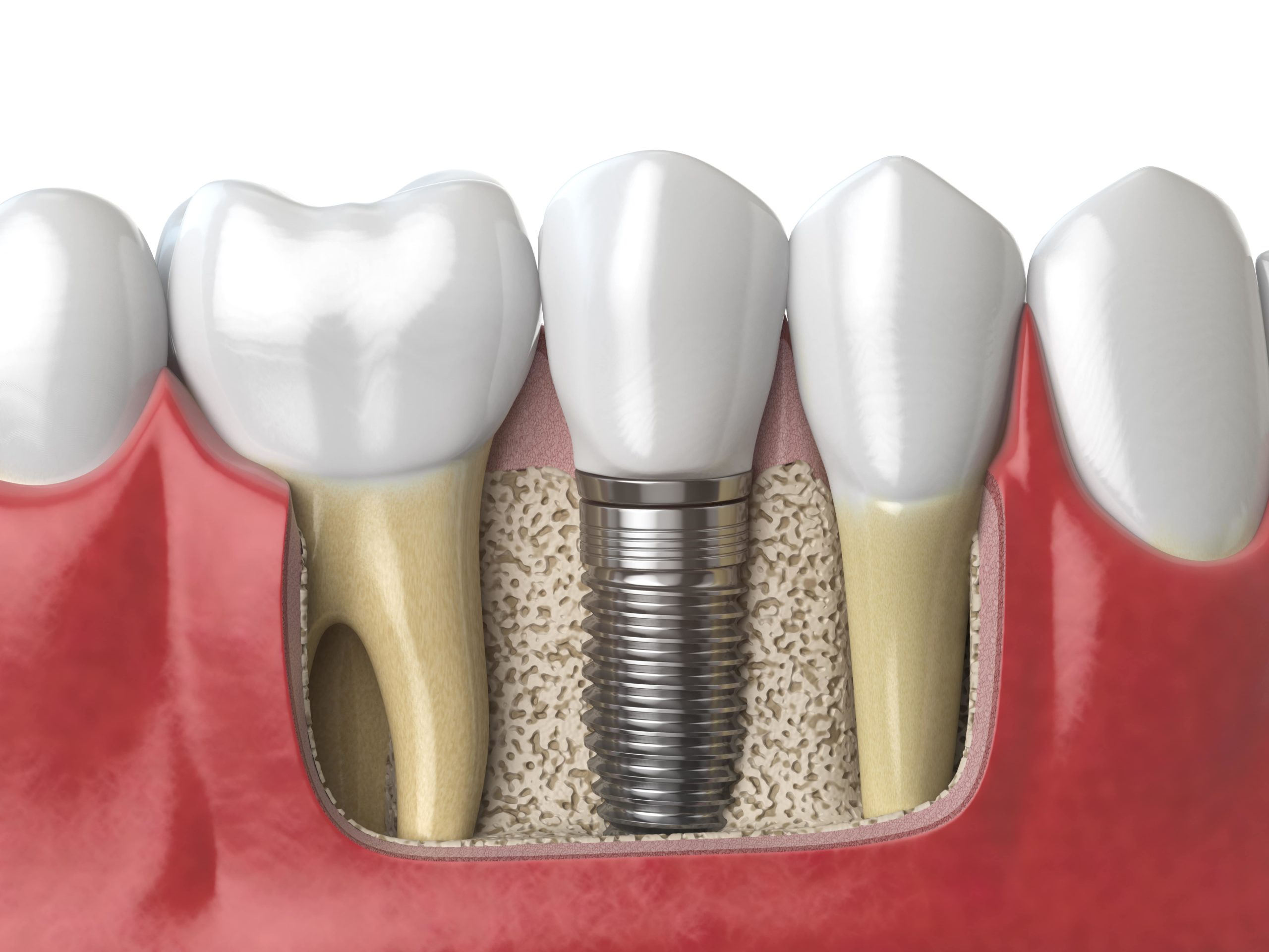 The best dental implants in