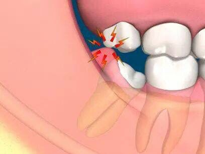 Pericoronitis - Channel Island Family Dental Office | Dentist In Ventura County